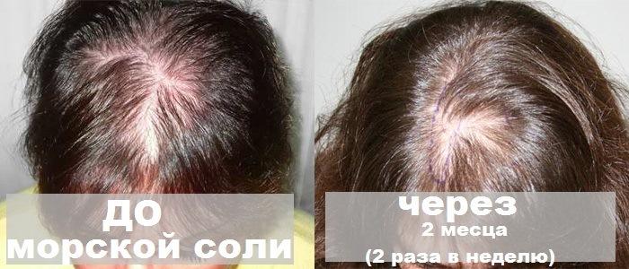 lechenie-vypadeniya-volos-gomeopatiya-cena-14734321841v2